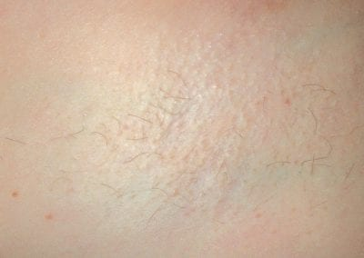 Laser Hair Removal After -img01