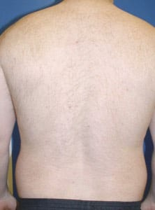 Laser Hair Removal After-img4